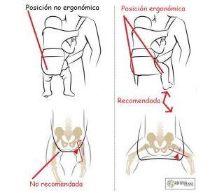 posicion cadera bebe
